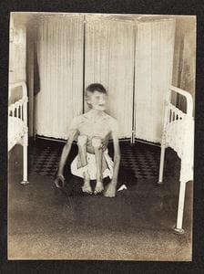 Rhoda Derry la niña en la jaula - La cruel historia de Rhoda Derry - paranoi