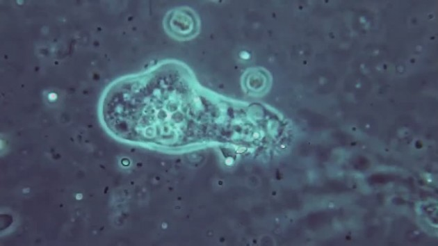 L'Amibe: l'organisme qui éteindra toutes formes de vie