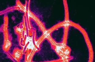 Des symptômes inexpliqués frappe les survivants d'Ebola