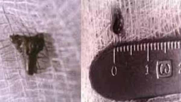 Vidéo: Implants extraterrestres : la preuve ultime de rapts cosmiques ?