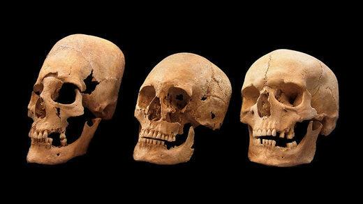 Le mystère des crânes ressemblant à des extraterrestres de l'Europe médiévale est révélé après 50 ans