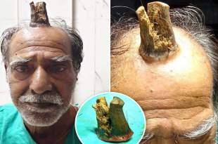 Une corne de 10 centimètres enlevée de la tête d'un Indien