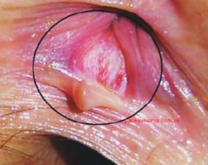 Cicatrización de fisuras anales