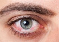 Remedios Caseros Para Ojos Rojos e Inflamados