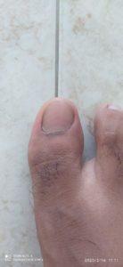 Cómo curar una uña encarnada del dedo gordo del pie