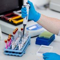 ИФА - иммуноферментный анализ крови: расшифровка