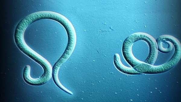 Как берут соскоб на энтеробиоз у детей: как сдавать мазок на анализ, как берут в домашних условиях, алгоритм и техника взятия
