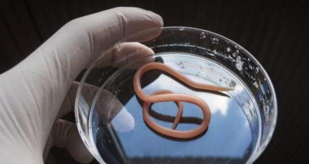 Биогельминты и геогельминты: симптомы и что это такое