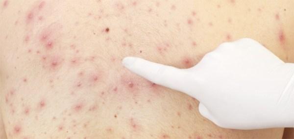 Высыпания на коже при глистах: причины возникновения и лечение