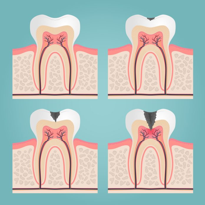 Cavity creates holes in the teeth that will slowly reach and attack the nerves in the teeth.