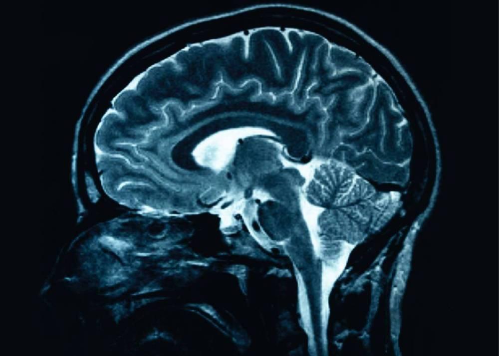 Sharing the secrets to big brains (2/2)