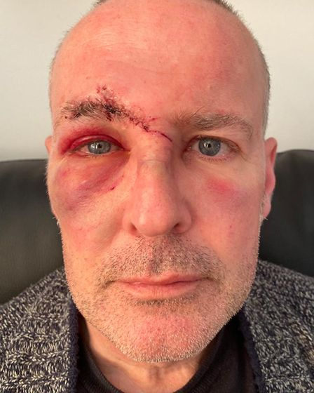 John Sanders with a swollen cheek and bruised right eye.