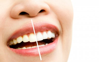 Teeth Whitening Parkway Clinic
