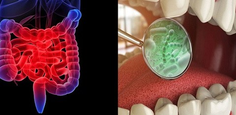 Ağız mikrobiyotası ve İBH