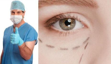 blefaroplastia-cirugia-ojos