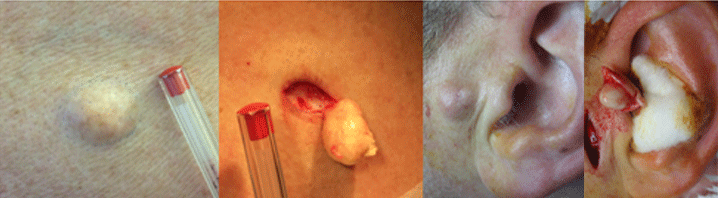 removal of cyst