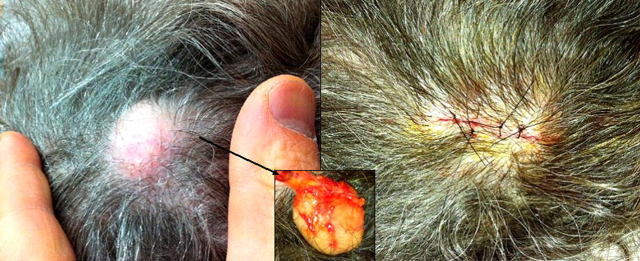 removal-cyst-scalp