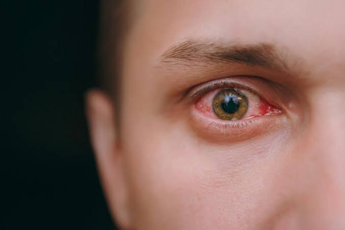 Eye pain, tearing noticed among COVID-19 child survivors - Study