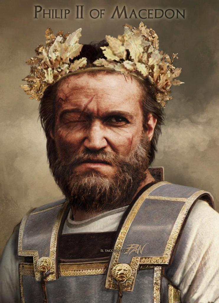 Philip II of Macedon. His right eye was surgically removed after an injury.