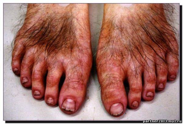 Ноги Хоббита Фото