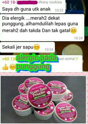 ruam_bayi_powder_eczema