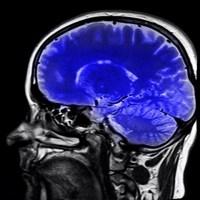brain-injury-1-320x200
