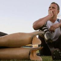 A incrível evolução das próteses na medicina moderna