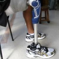Entendendo os joelhos protéticos para amputação de coxa