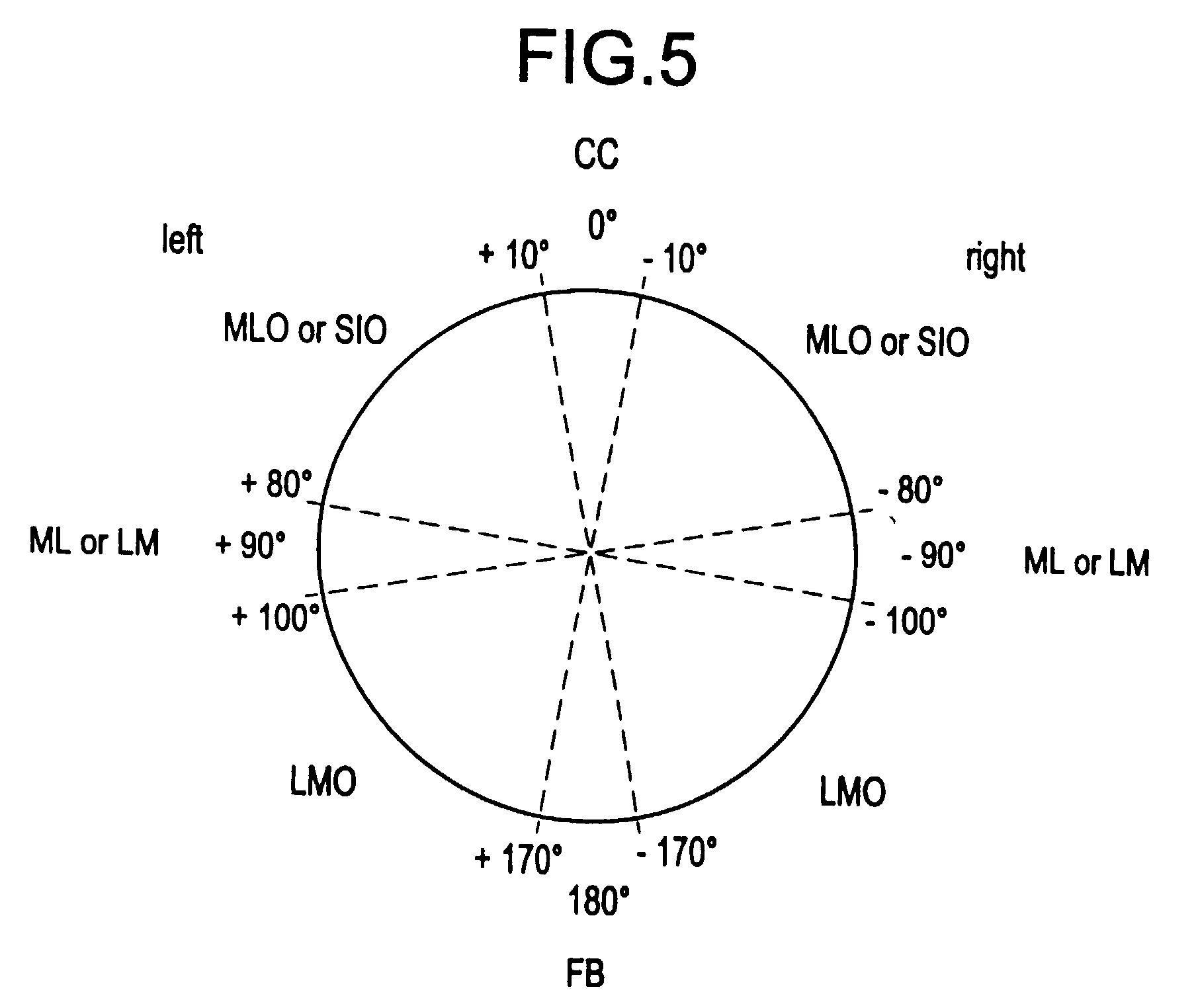 Patent Ep A1