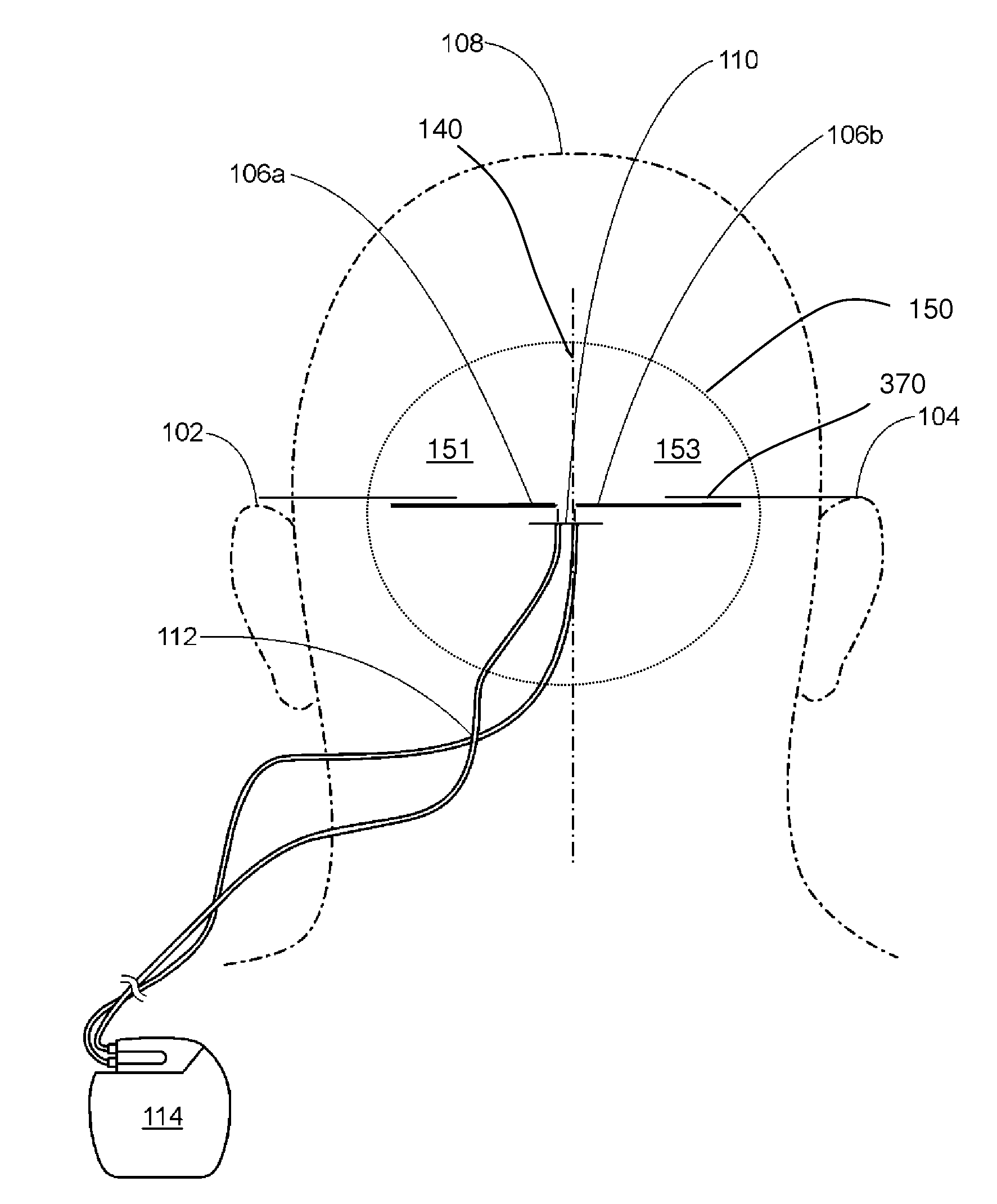 Diagram Of Brain And Pain