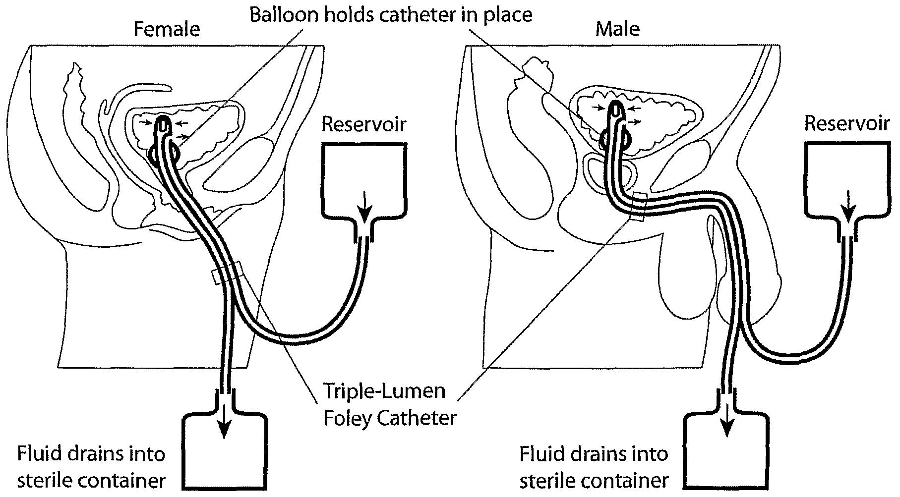 Bladder Irrigation Thainurseclub