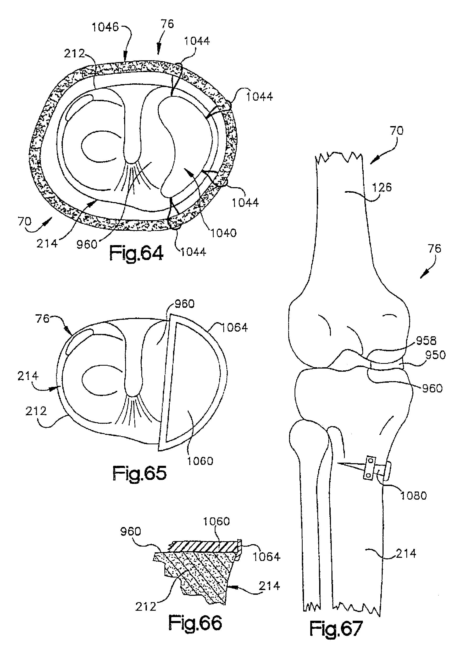 Wiring Diagram Astra Merit Sel