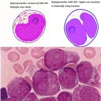 Differences between hypergranular (M3) and microgranular (M3v) variants of acute promyelocytic leukemia ( APML)