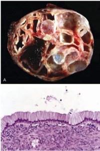 Mucinous cystadenoma pancreas