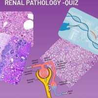 Renal pathology quiz for NEET-SS/ DM- Oncopathology/ DM Histopathology, Fellowships, FRCPath- Histopathology and AP/CP boards