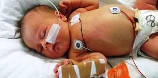 Newborn baby in the hospital