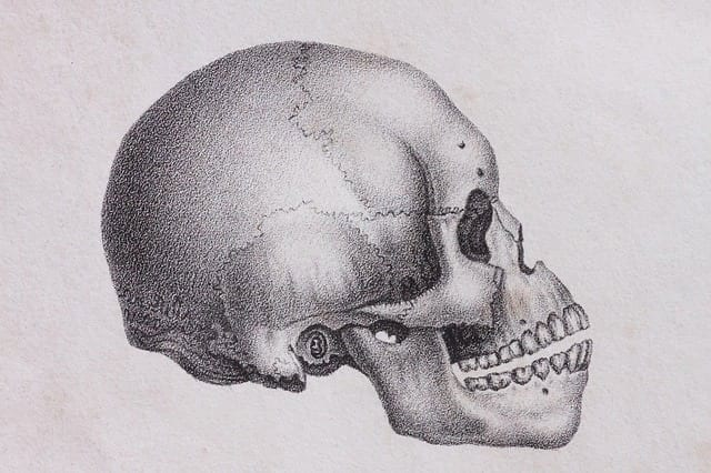 3-D Printed Skulls For Delicate Surgery Preparation