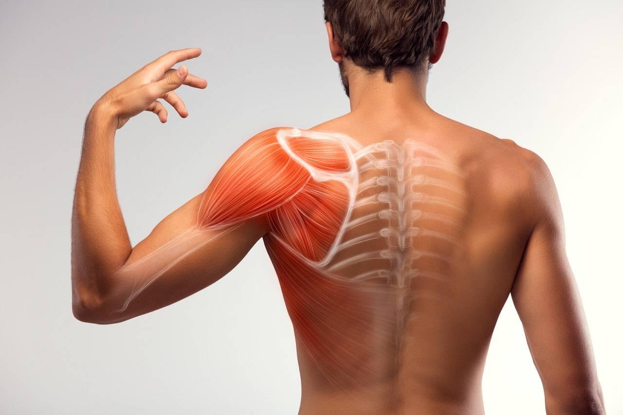 Prävention des Schulter Impingement Syndroms: Worauf du achten solltest