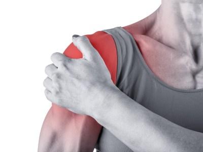 Das Impingement-Syndrom: Anatomische Grundlagen, Verletzungsursachen sowie Maßnahmen zur Prävention & Rehabilitation