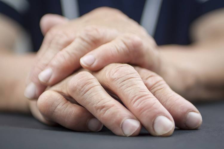 Schmerzende Gelenke: Hilft Knoblauch (Allium sativum) bei rheumatoider Arthritis?