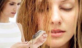 queda de cabelo1 - Queda de cabelos - Parte I