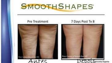 2012 01 05 - Tratando a Celulite com o Smoothshape