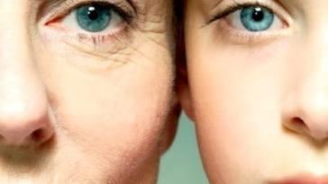 Rugas - Vem Aí a Vacina Antienvelhecimento!