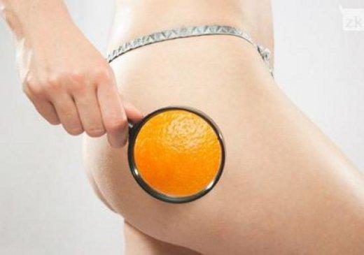 celulite aspecto casca de laranja - Truques Para Disfarçar a Celulite!