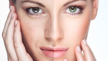 cicatrizes de acne - Cicatrizes de Acne: Como Corrigir?