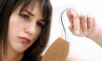 foto mulher calvicie feminina queda de cabelo descoberta - Calvície Feminina
