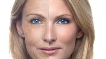 Cuidado: alguns tratamentos podem causar envelhecimento precoce