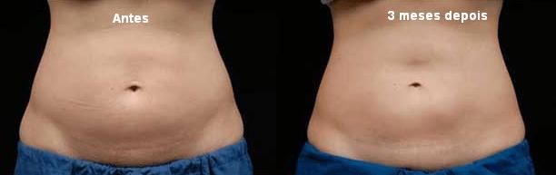 Criolipólise antes e depois