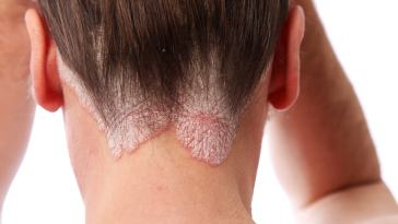 scalp psoriasis - Como Evitar as Crises de Psoríase?