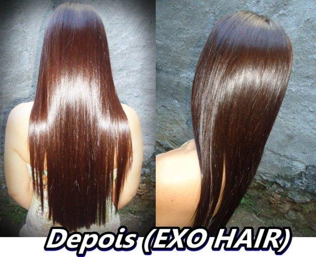 DSC02636 horz - Exoplastia Capilar Nanotrônica Exo Hair